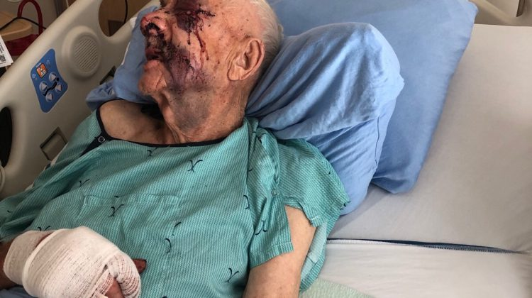 Man in Courtenay, B.C. attempts to hack 89-year-old to death with machete
