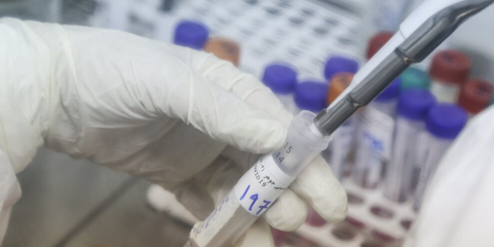 Coronavirus testing in Ontario hits new record highs in testing and infections
