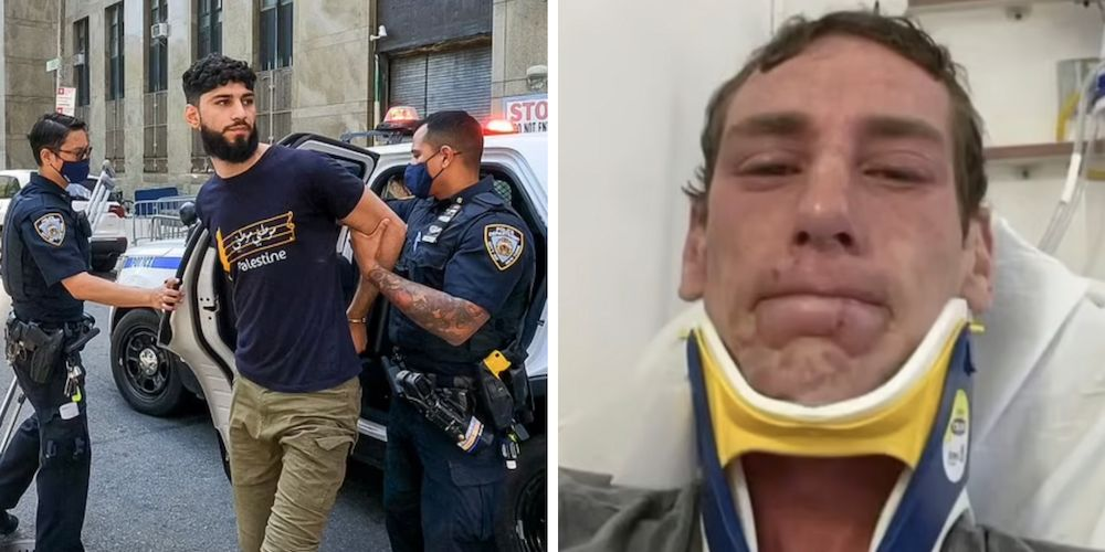 'I don't even want to look in the mirror': NYC man beaten, maced in broad daylight speaks out about anti-Semitic attack